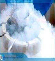 Nitrogênio líquido onde comprar sp